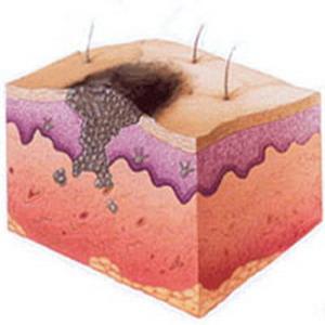 Рак кожи базалиома это смертельно - 481c
